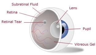 Symptoms of retinal problems