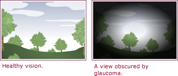 What Are the Symptoms of Glaucoma, and How Is It Diagnosed